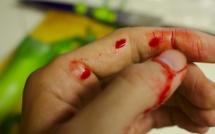 Paris 18e : doigt coupé en escaladant la grille du centre sportif des Fillettes